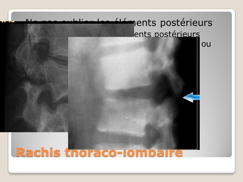 Rachis thoraco-lombaire Ne pas oublier les éléments postérieurs Une distraction des éléments postérieurs (augmentation de lespace inter-épineux ou fra