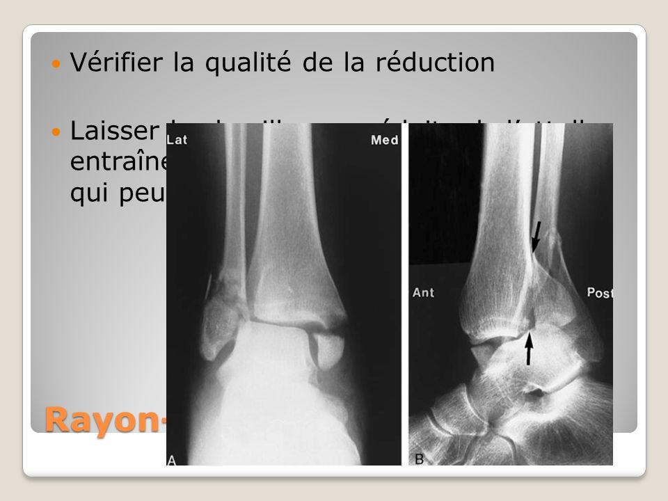 Rayon-x post réduction Vérifier la qualité de la réduction Laisser la cheville non réduite ds lattelle entraîne un souffrance des tissus mous qui peut