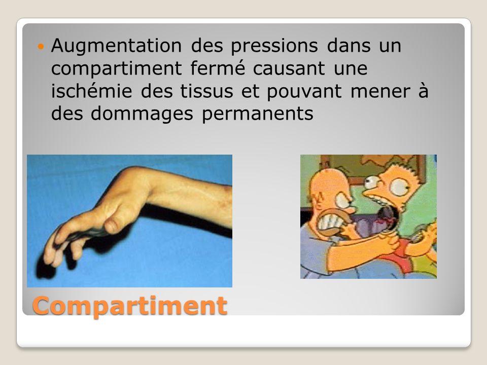 Compartiment Augmentation des pressions dans un compartiment fermé causant une ischémie des tissus et pouvant mener à des dommages permanents