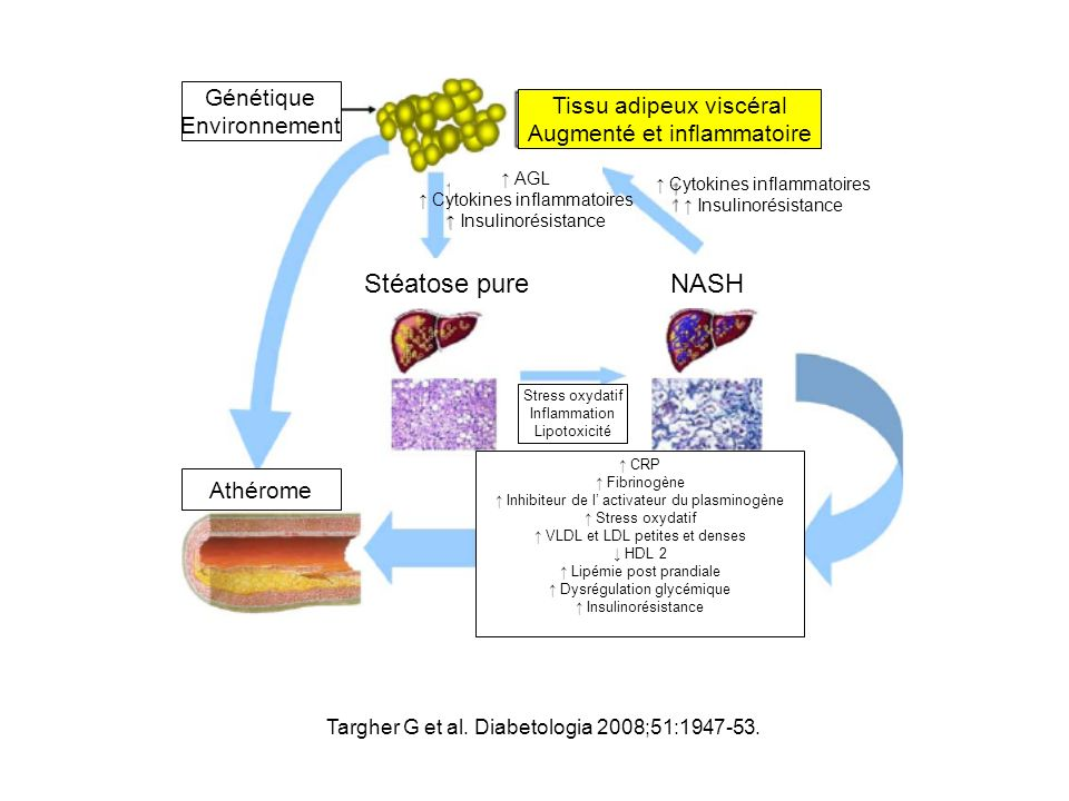 Tissu adipeux viscéral Augmenté et inflammatoire Génétique Environnement AGL Cytokines inflammatoires Insulinorésistance Cytokines inflammatoires Insu
