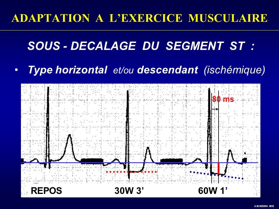 ADAPTATION A LEXERCICE MUSCULAIRE SOUS - DECALAGE DU SEGMENT ST : Type horizontal et/ou descendant (ischémique) 80 ms REPOS30W 360W 1 A.W.KEDRA 2012