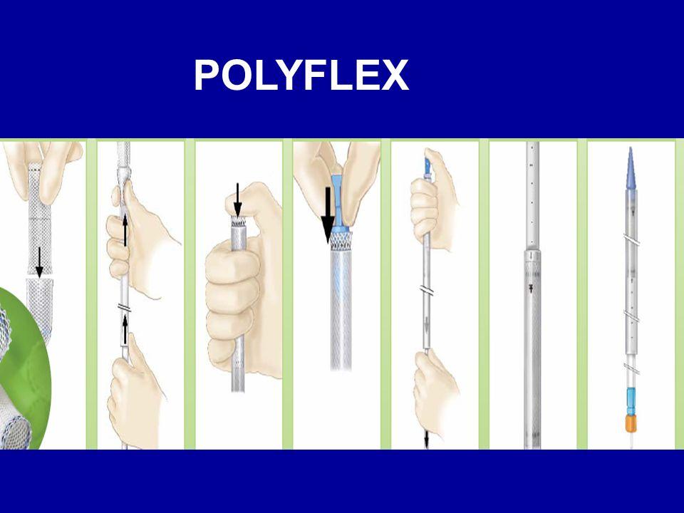 La prothèse idéale Assez large Bonne puissance radiale Système rigide et de petit calibre Plasticité +++ Ne doit pas migrer Doit être extirpable facilement: fil de rappel proximal et distal (retrait par éversion) Biocompatible (pas de granulome )