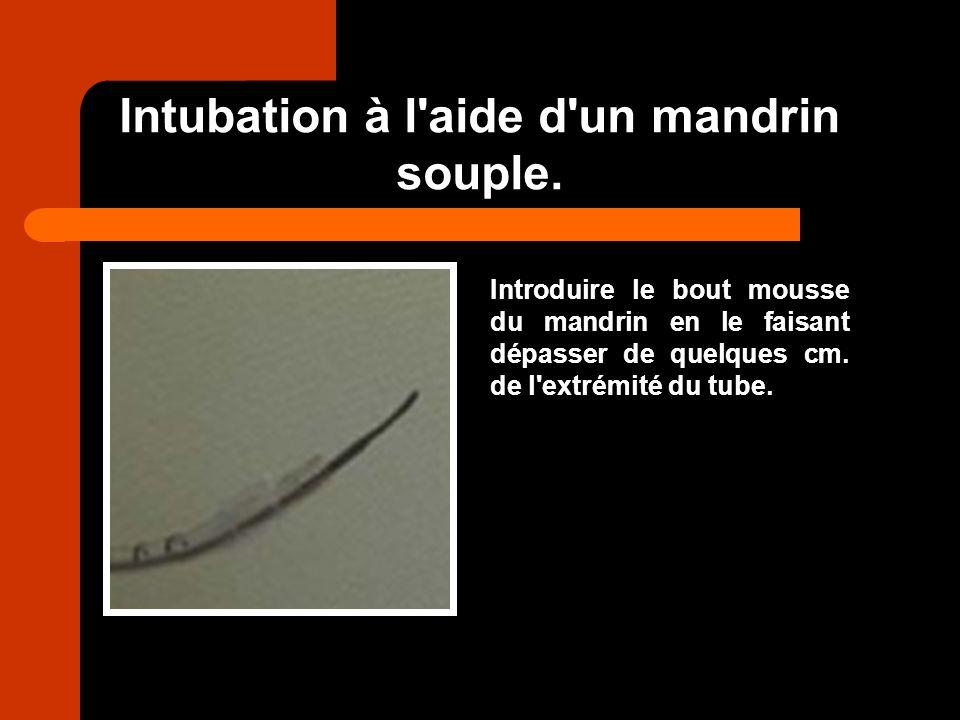 Intubation à l'aide d'un mandrin souple. Introduire le bout mousse du mandrin en le faisant dépasser de quelques cm. de l'extrémité du tube.