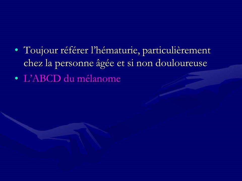 Toujour référer lhématurie, particulièrement chez la personne âgée et si non douloureuseToujour référer lhématurie, particulièrement chez la personne