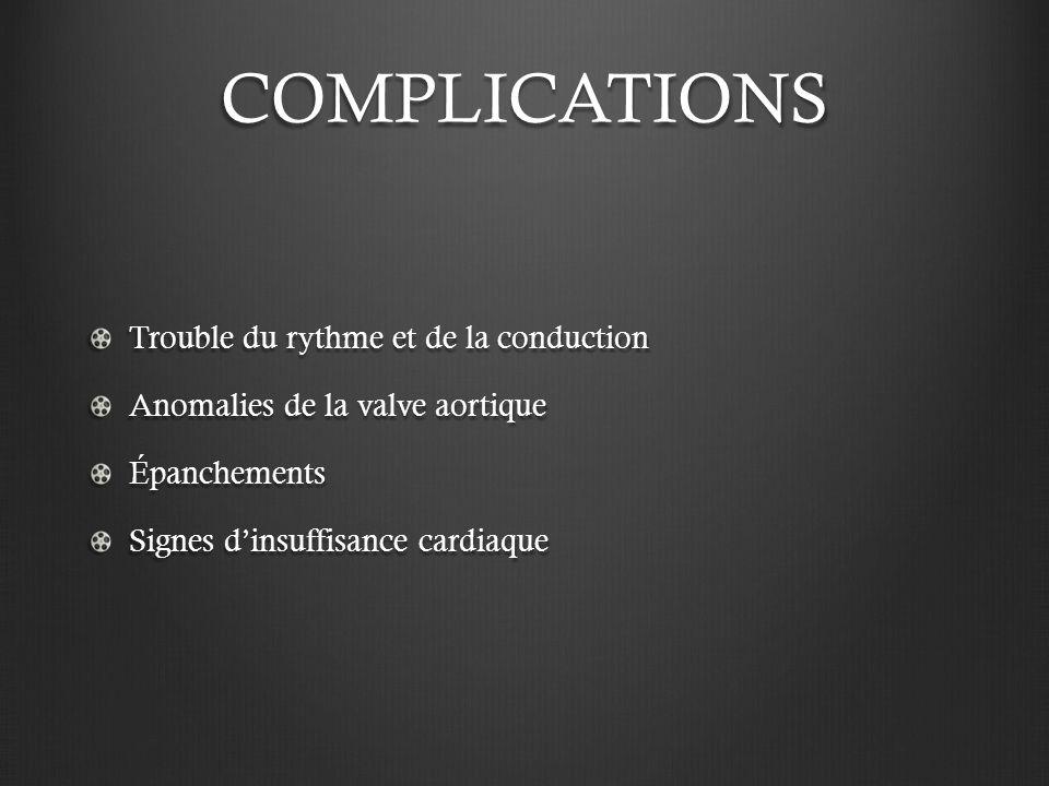 COMPLICATIONS Trouble du rythme et de la conduction Anomalies de la valve aortique Épanchements Signes dinsuffisance cardiaque