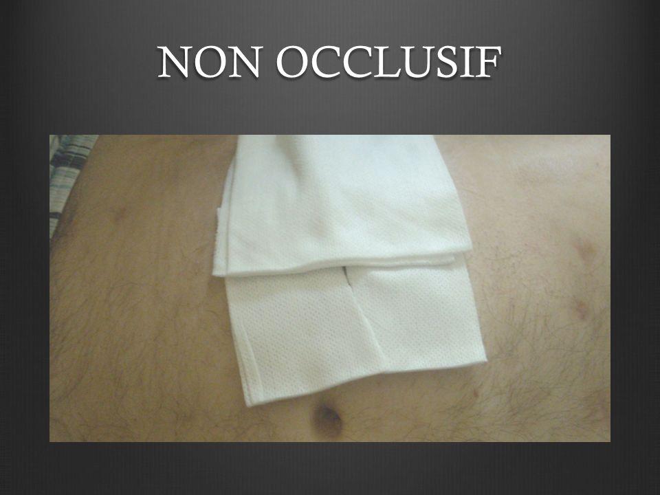 NON OCCLUSIF