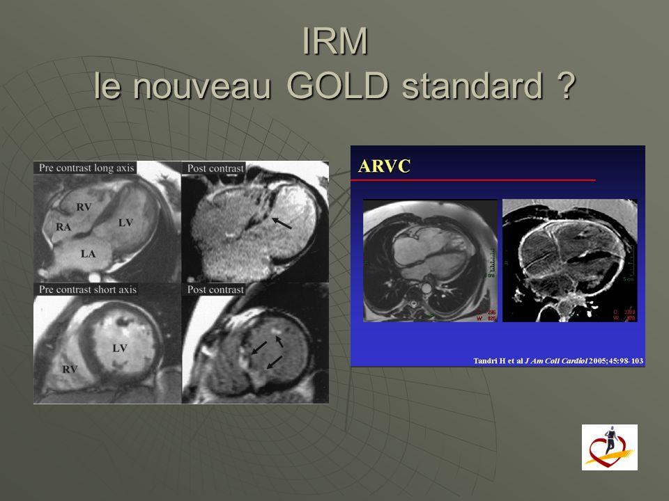 IRM le nouveau GOLD standard ?