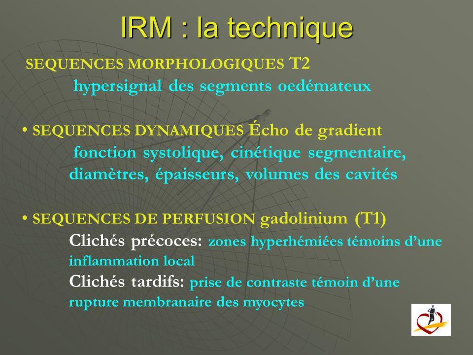 IRM : la technique SEQUENCES MORPHOLOGIQUES T2 hypersignal des segments oedémateux SEQUENCES DYNAMIQUES Écho de gradient fonction systolique, cinétiqu