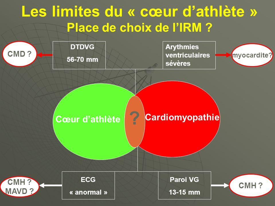 Les limites du « cœur dathlète » Place de choix de lIRM ? myocardite? CMH ? MAVD ? CMD ? CMH ? Cœur dathlète Cardiomyopathie ? DTDVG 56-70 mm Arythmie