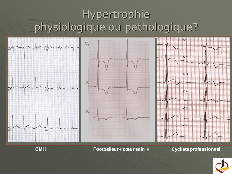 V4V4 V6V6 V5V5 Cycliste professionnelCMHFootballeur « cœur sain » Hypertrophie physiologique ou pathologique?