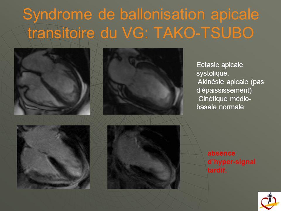 Syndrome de ballonisation apicale transitoire du VG: TAKO-TSUBO Ectasie apicale systolique. Akinésie apicale (pas dépaississement) Cinétique médio- ba