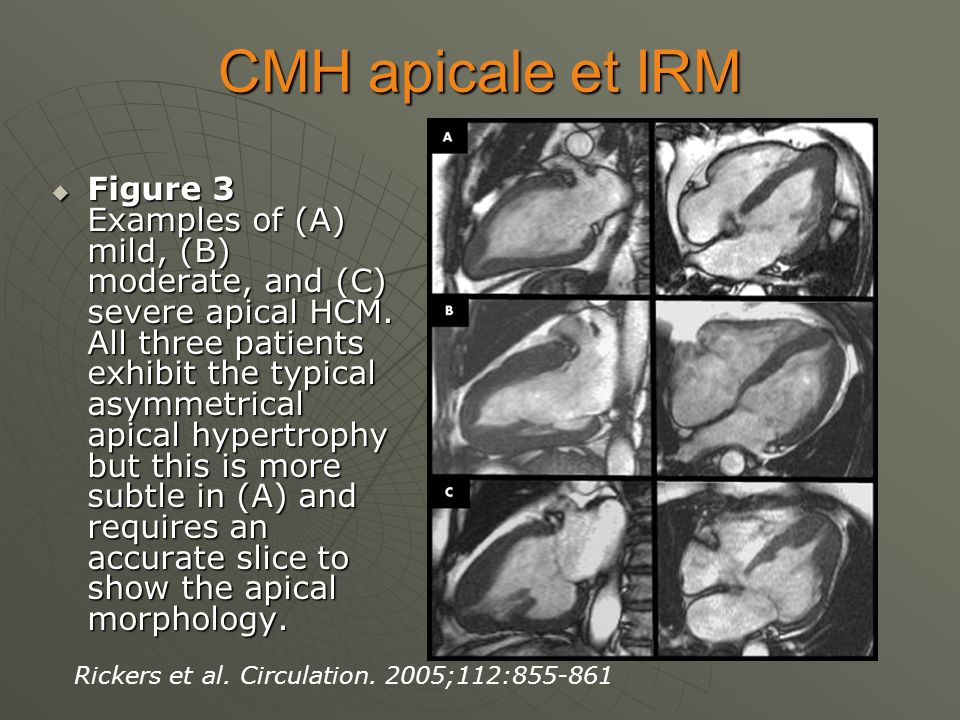 CMH apicale et IRM Figure 3 Examples of (A) mild, (B) moderate, and (C) severe apical HCM. All three patients exhibit the typical asymmetrical apical