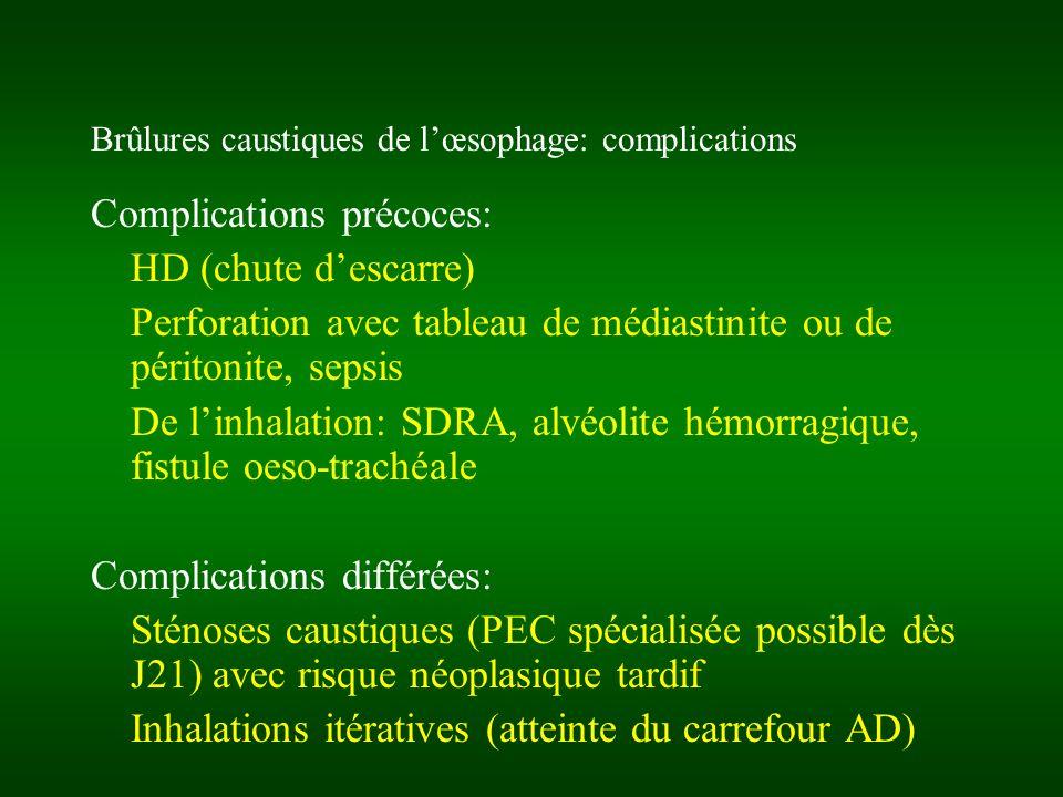 Brûlures caustiques de lœsophage: complications Complications précoces: HD (chute descarre) Perforation avec tableau de médiastinite ou de péritonite,
