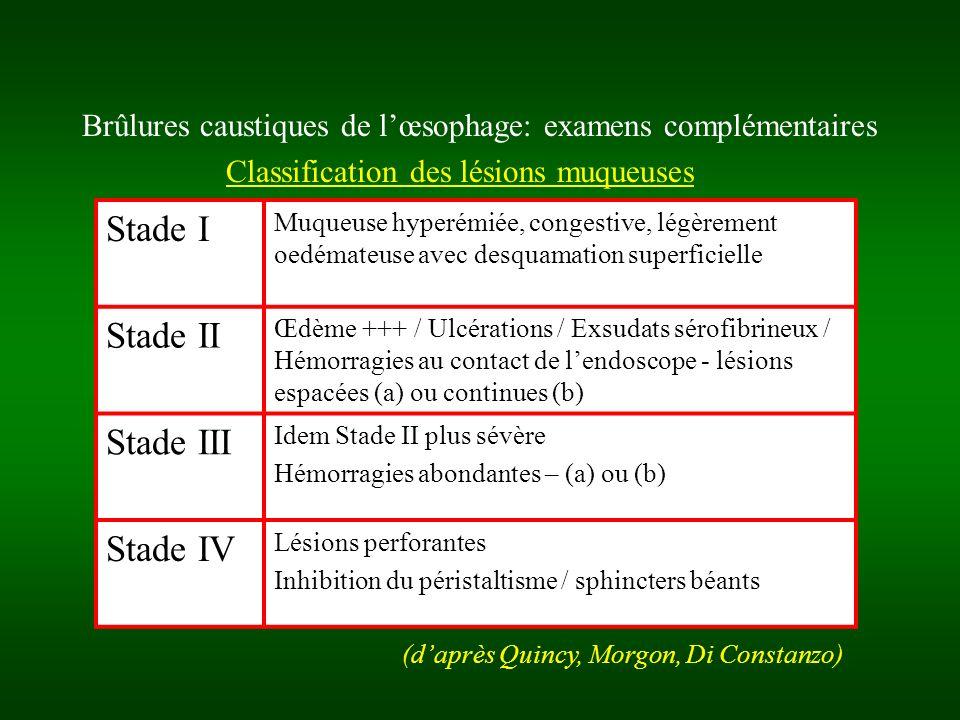 Brûlures caustiques de lœsophage: classification pronostique et thérapeutique Forme bénigne: –80% des intoxications chez lenfant, 30 à 80% chez ladulte –Quantité ingérée # 1 gorgée –Signes cliniques inconstants (mineurs) –Endoscopie: lésions stade I ou IIa –Surveillance brève (72 h), reprise alimentaire orale rapide, suivi endoscopique –Guérison sans séquelles, mortalité 0%