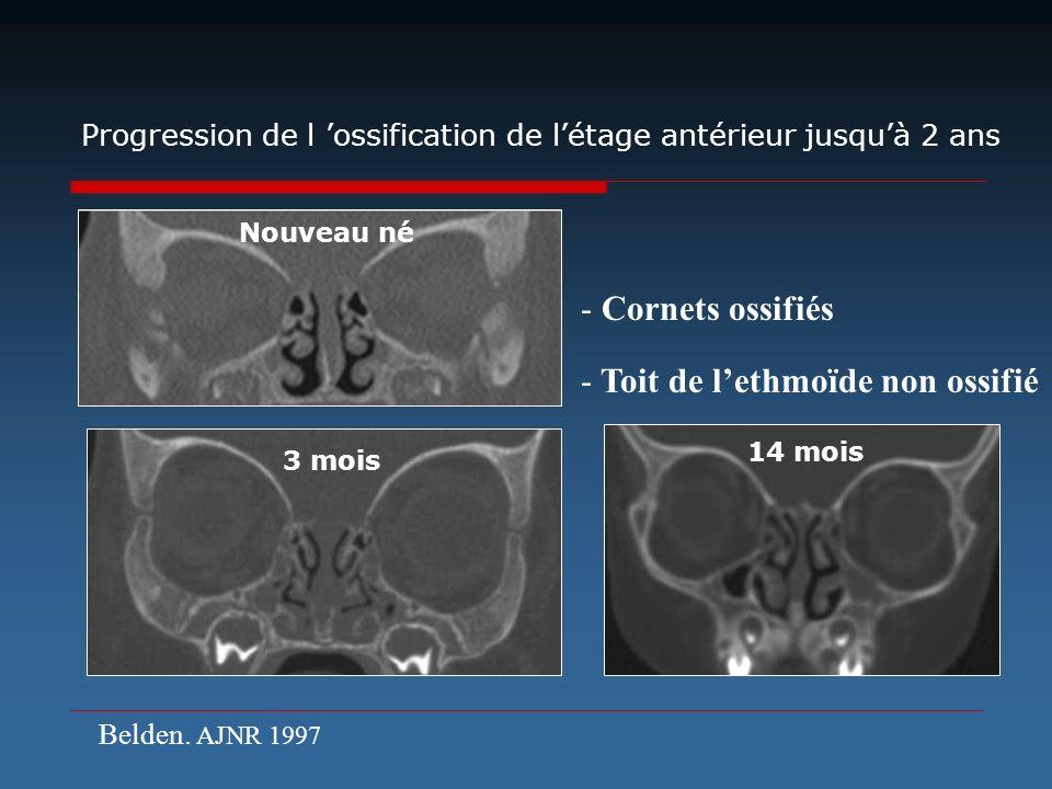 - Cornets ossifiés - Toit de lethmoïde non ossifié 3 mois Progression de l ossification de létage antérieur jusquà 2 ans 14 mois Nouveau né Belden. AJ