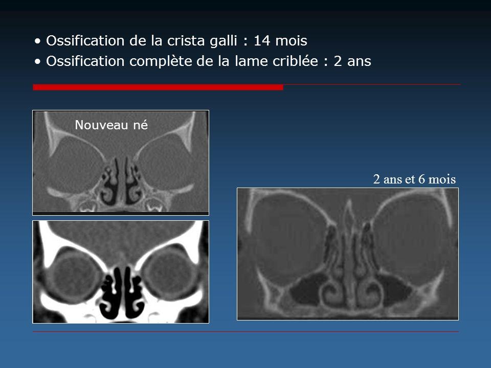 2 ans et 6 mois Ossification de la crista galli : 14 mois Ossification complète de la lame criblée : 2 ans Nouveau né