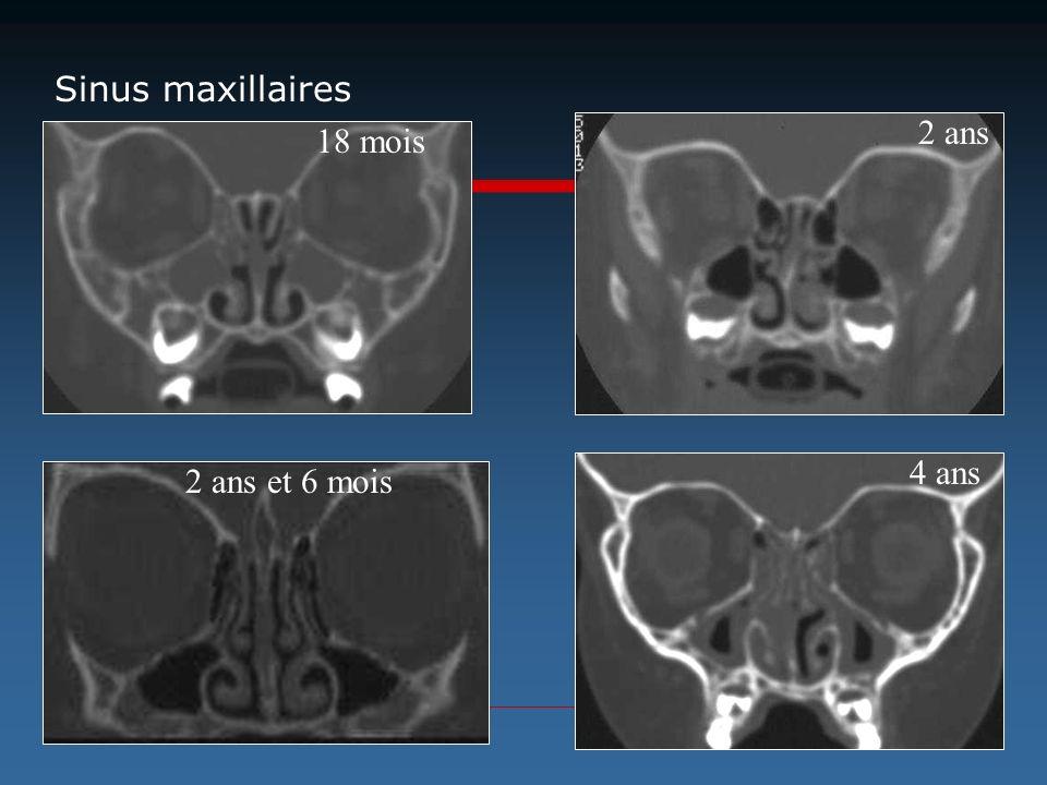 2 ans 18 mois 2 ans et 6 mois 4 ans Sinus maxillaires