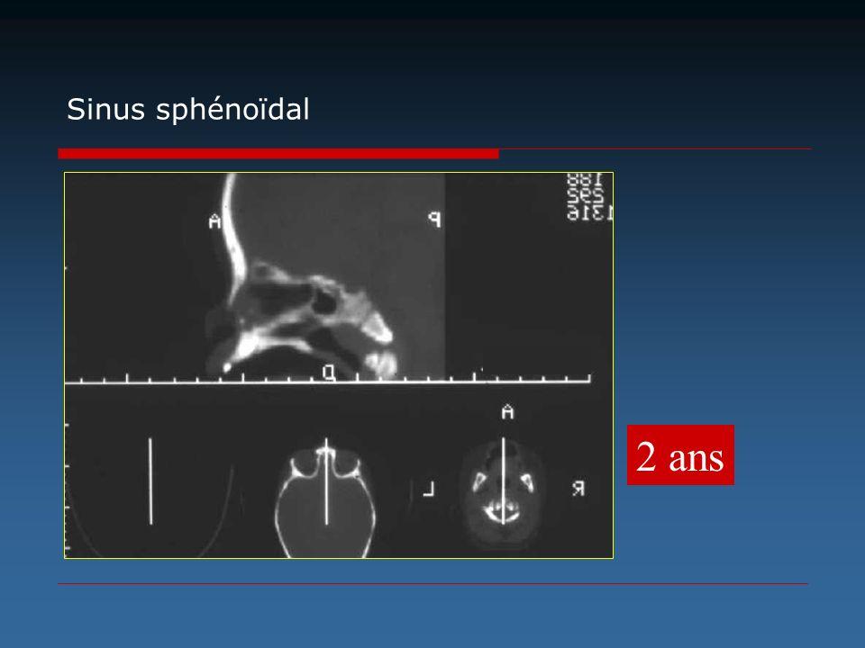 2 ans Sinus sphénoïdal