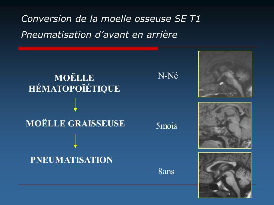 Pneumatisation davant en arrière MOËLLE HÉMATOPOÏÉTIQUE MOËLLE GRAISSEUSE PNEUMATISATION N-Né 5mois 8ans Conversion de la moelle osseuse SE T1