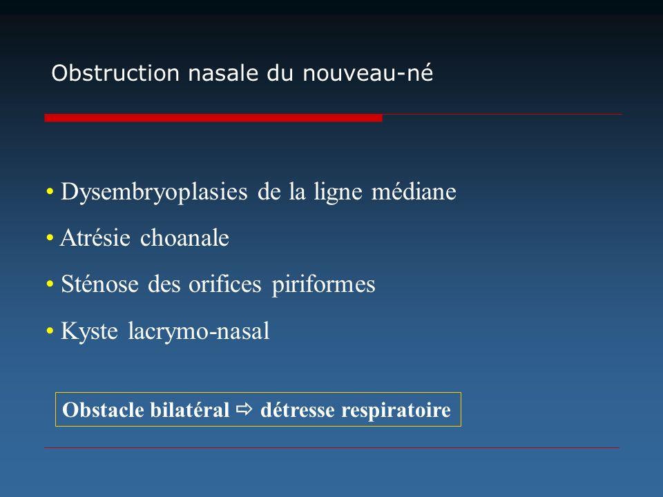Obstruction nasale du nouveau-né Dysembryoplasies de la ligne médiane Atrésie choanale Sténose des orifices piriformes Kyste lacrymo-nasal Obstacle bi