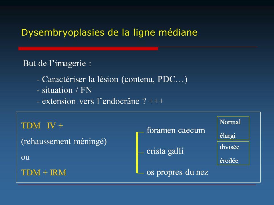 foramen caecum crista galli os propres du nez TDM IV + (rehaussement méningé) ou TDM + IRM Normal élargi divisée érodée Dysembryoplasies de la ligne m