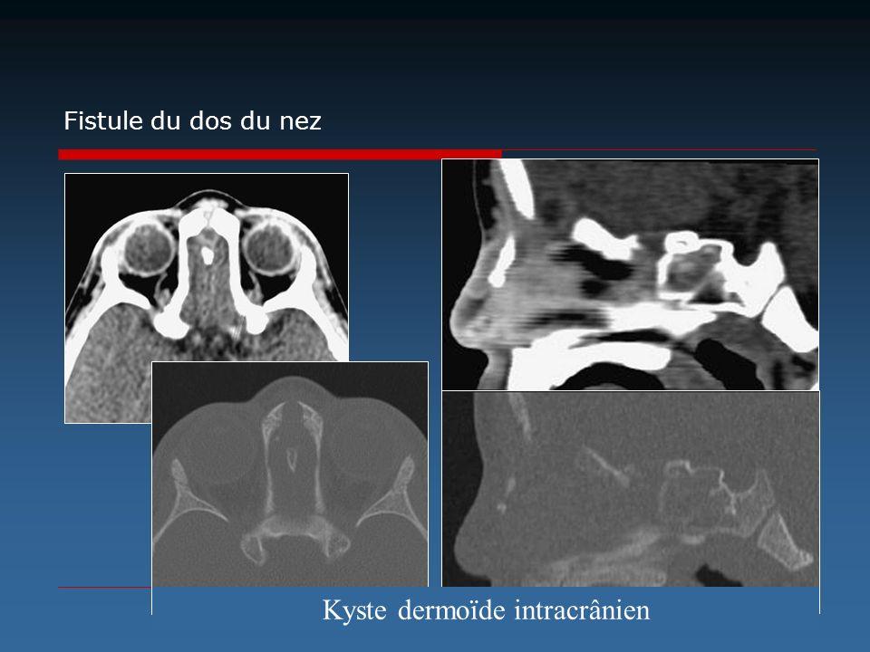 Fistule du dos du nez Kyste dermoïde intracrânien