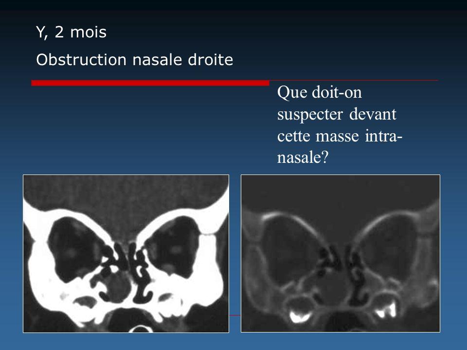 Que doit-on suspecter devant cette masse intra- nasale? Y, 2 mois Obstruction nasale droite