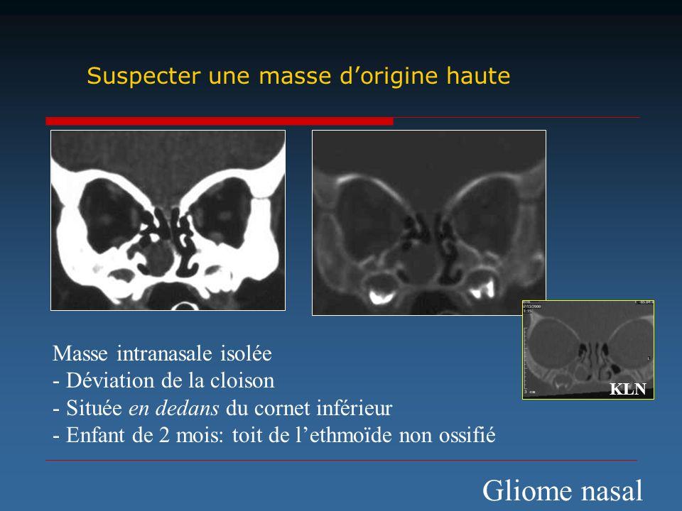 Masse intranasale isolée - Déviation de la cloison - Située en dedans du cornet inférieur - Enfant de 2 mois: toit de lethmoïde non ossifié Suspecter