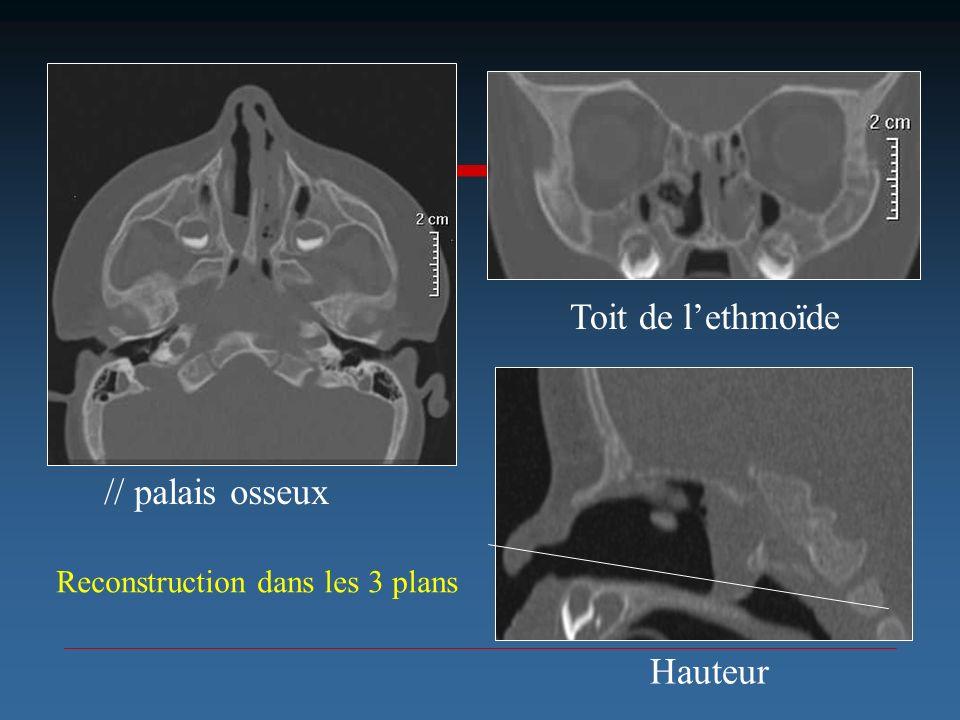 // palais osseux Toit de lethmoïde Hauteur Reconstruction dans les 3 plans