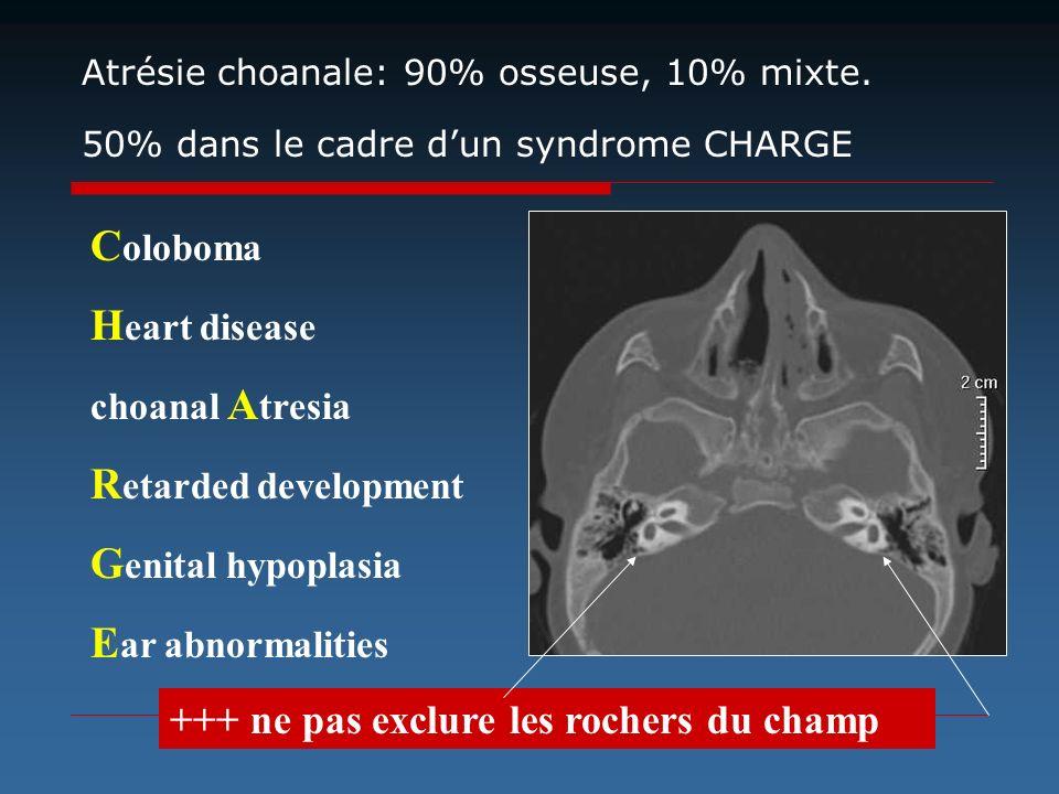 Atrésie choanale: 90% osseuse, 10% mixte. 50% dans le cadre dun syndrome CHARGE C oloboma H eart disease choanal A tresia R etarded development G enit