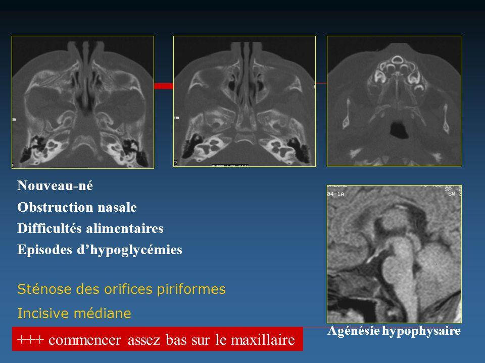 Nouveau-né Obstruction nasale Difficultés alimentaires Episodes dhypoglycémies +++ commencer assez bas sur le maxillaire Sténose des orifices piriform