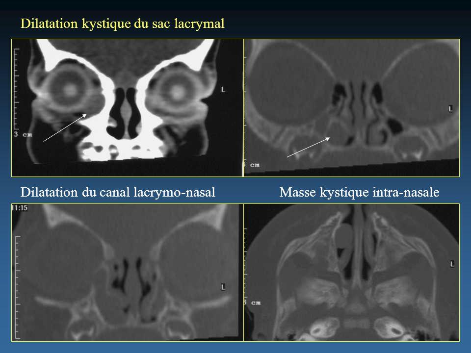 Dilatation kystique du sac lacrymal Dilatation du canal lacrymo-nasalMasse kystique intra-nasale