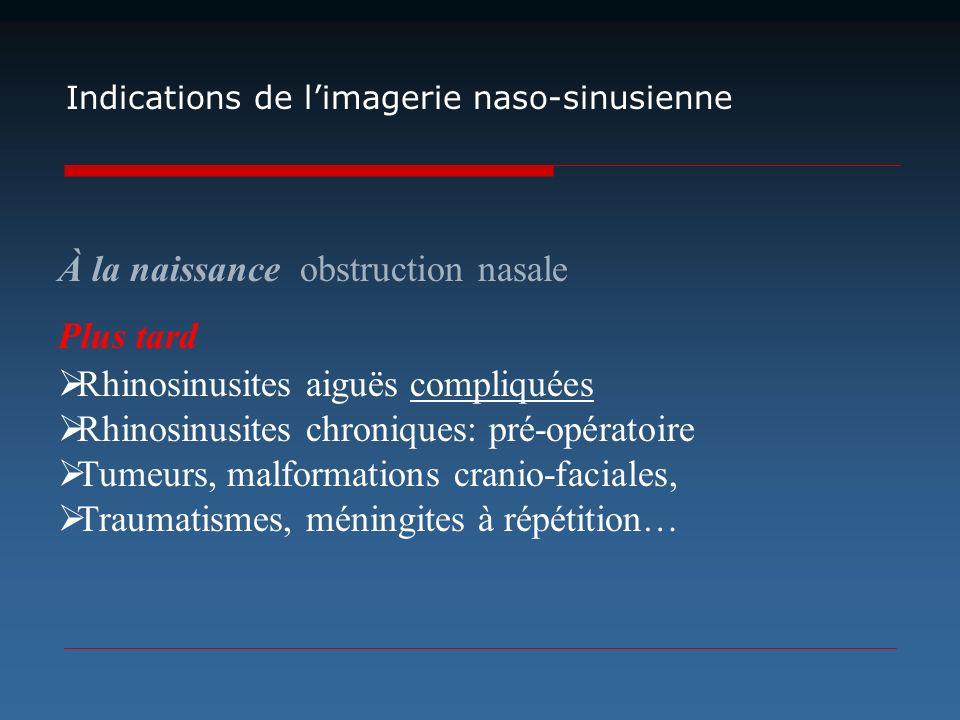 Indications de limagerie naso-sinusienne À la naissance obstruction nasale Plus tard Rhinosinusites aiguës compliquées Rhinosinusites chroniques: pré-