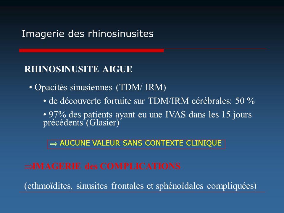 RHINOSINUSITE AIGUE IMAGERIE des COMPLICATIONS (ethmoïdites, sinusites frontales et sphénoïdales compliquées) Imagerie des rhinosinusites Opacités sin