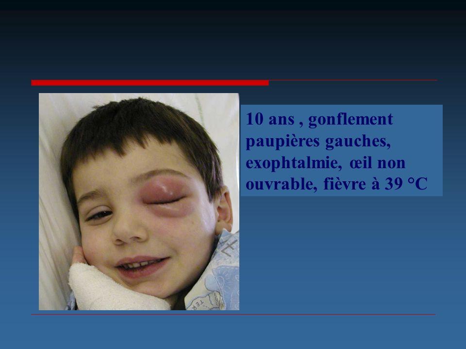 10 ans, gonflement paupières gauches, exophtalmie, œil non ouvrable, fièvre à 39 °C