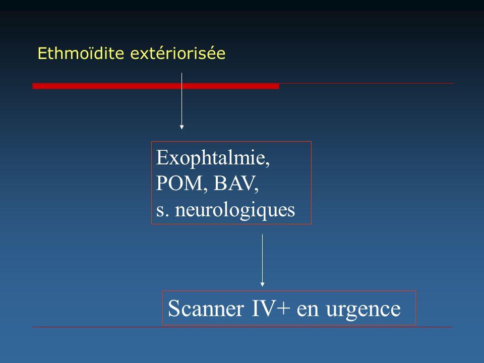 Exophtalmie, POM, BAV, s. neurologiques Scanner IV+ en urgence Ethmoïdite extériorisée