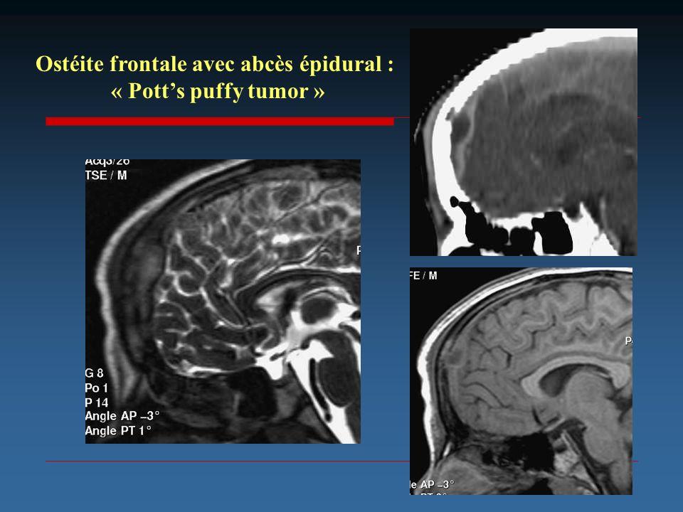 Ostéite frontale avec abcès épidural : « Potts puffy tumor »