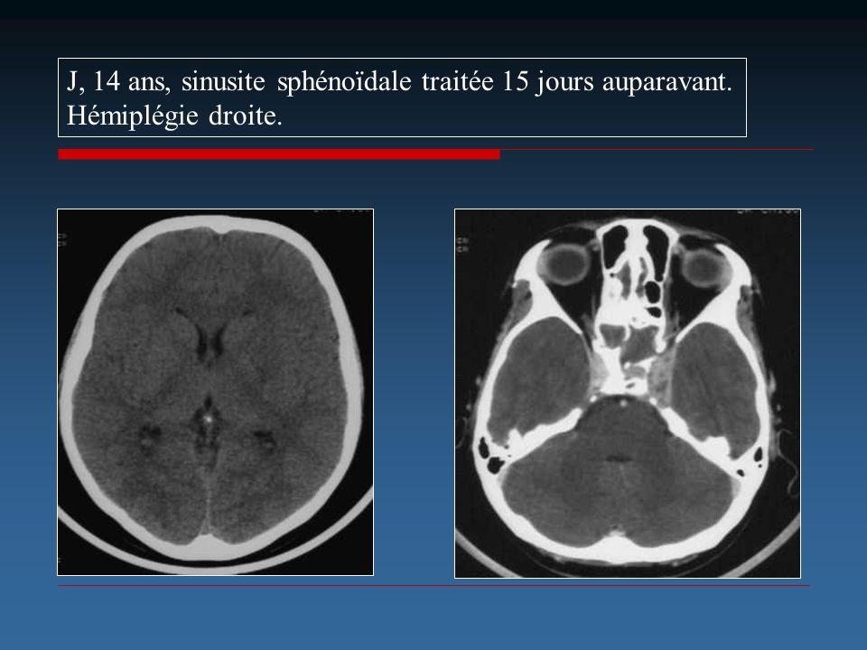 J, 14 ans, sinusite sphénoïdale traitée 15 jours auparavant. Hémiplégie droite.