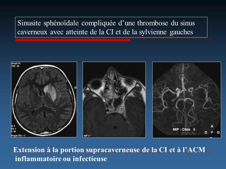 Sinusite sphénoïdale compliquée dune thrombose du sinus caverneux avec atteinte de la CI et de la sylvienne gauches Extension à la portion supracavern