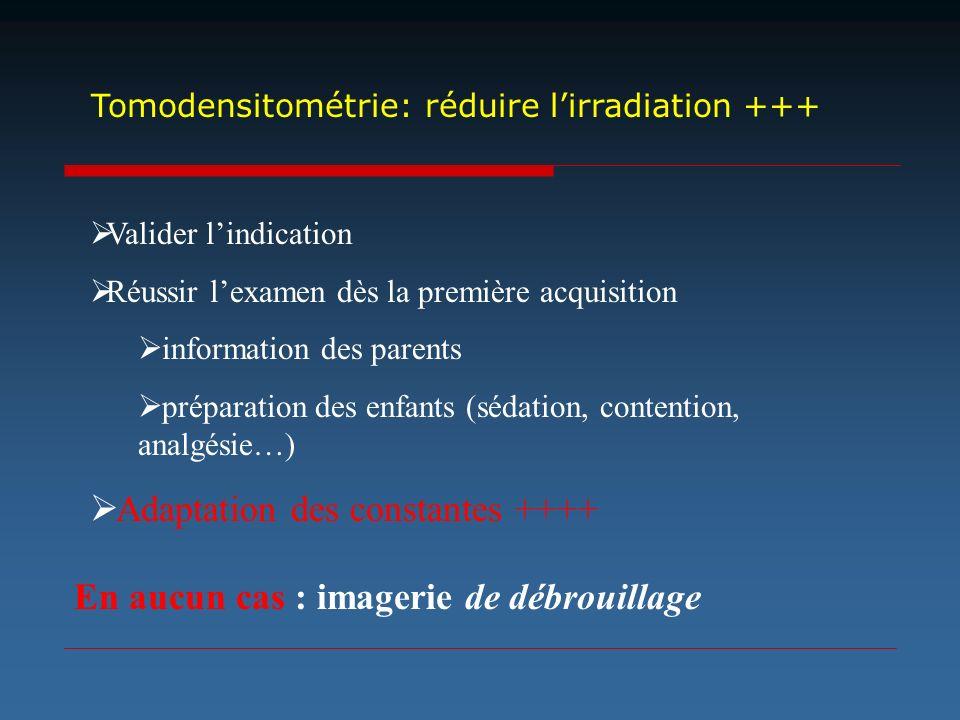 Tomodensitométrie: réduire lirradiation +++ Valider lindication Réussir lexamen dès la première acquisition information des parents préparation des en