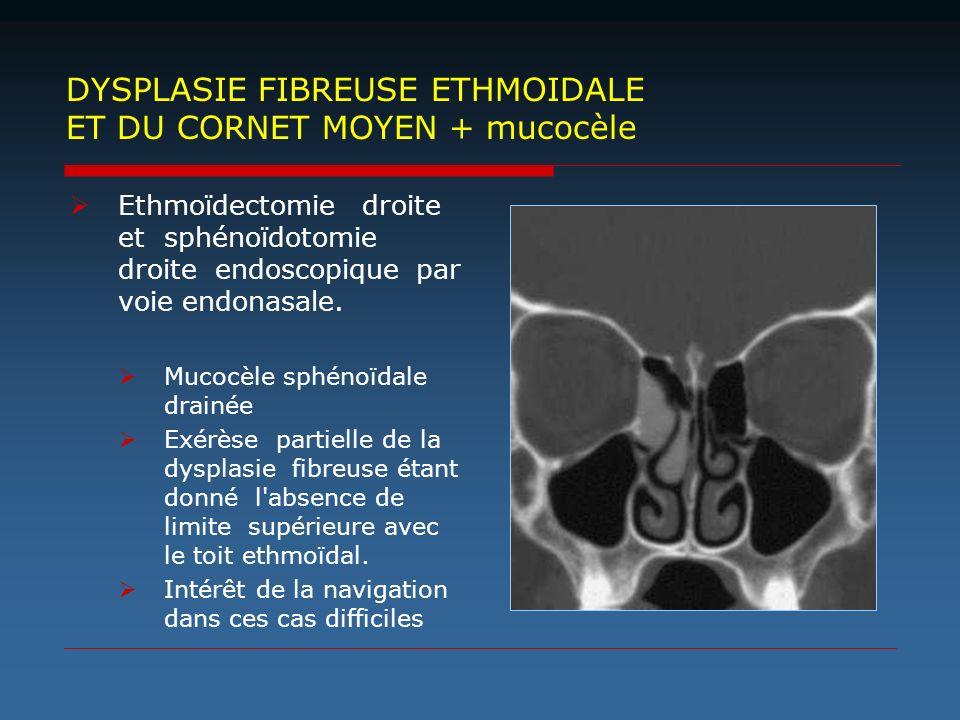Ethmoïdectomie droite et sphénoïdotomie droite endoscopique par voie endonasale. Mucocèle sphénoïdale drainée Exérèse partielle de la dysplasie fibreu