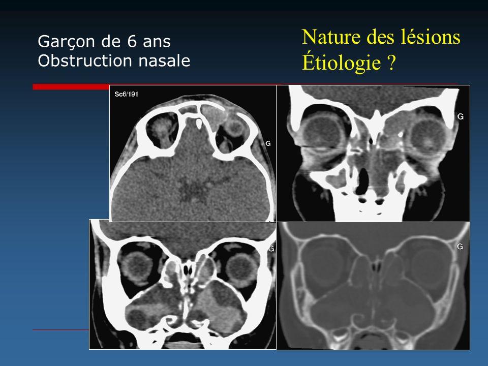 Nature des lésions Étiologie ? Garçon de 6 ans Obstruction nasale