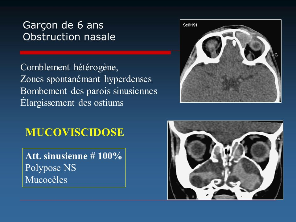 Garçon de 6 ans Obstruction nasale Comblement hétérogène, Zones spontanémant hyperdenses Bombement des parois sinusiennes Élargissement des ostiums At