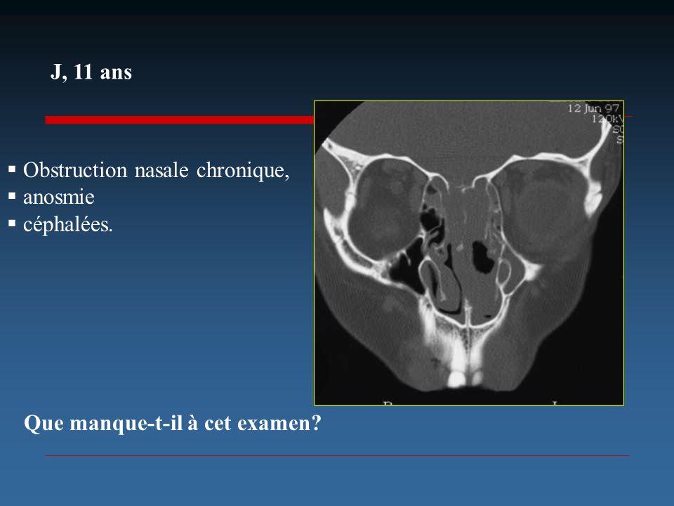 J, 11 ans Obstruction nasale chronique, anosmie céphalées. Que manque-t-il à cet examen?