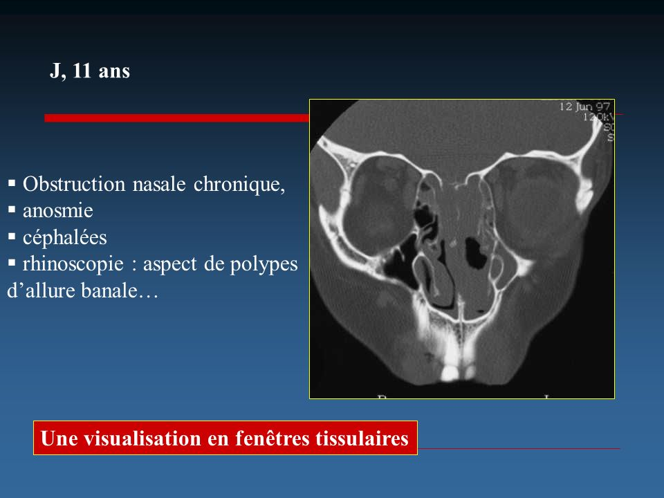 J, 11 ans Obstruction nasale chronique, anosmie céphalées rhinoscopie : aspect de polypes dallure banale… Que manque-t-il à cet examen? Une visualisat