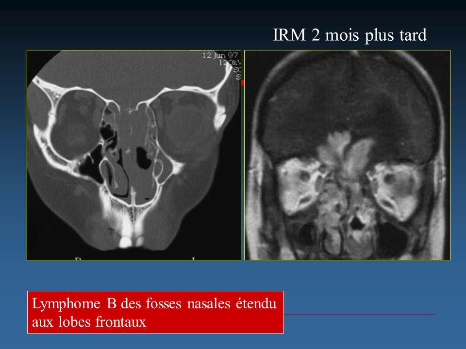 Lymphome B des fosses nasales étendu aux lobes frontaux IRM 2 mois plus tard