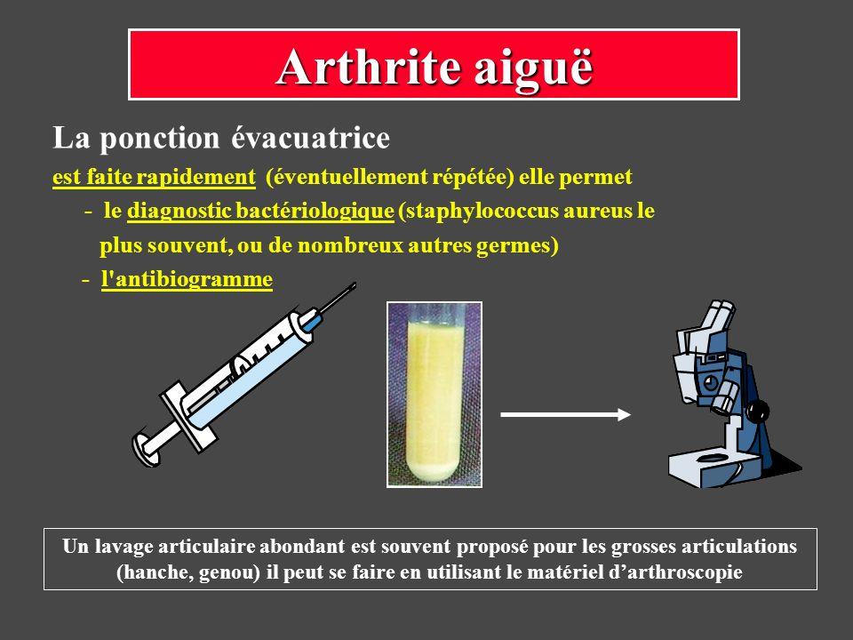 La ponction évacuatrice est faite rapidement (éventuellement répétée) elle permet - le diagnostic bactériologique (staphylococcus aureus le plus souve