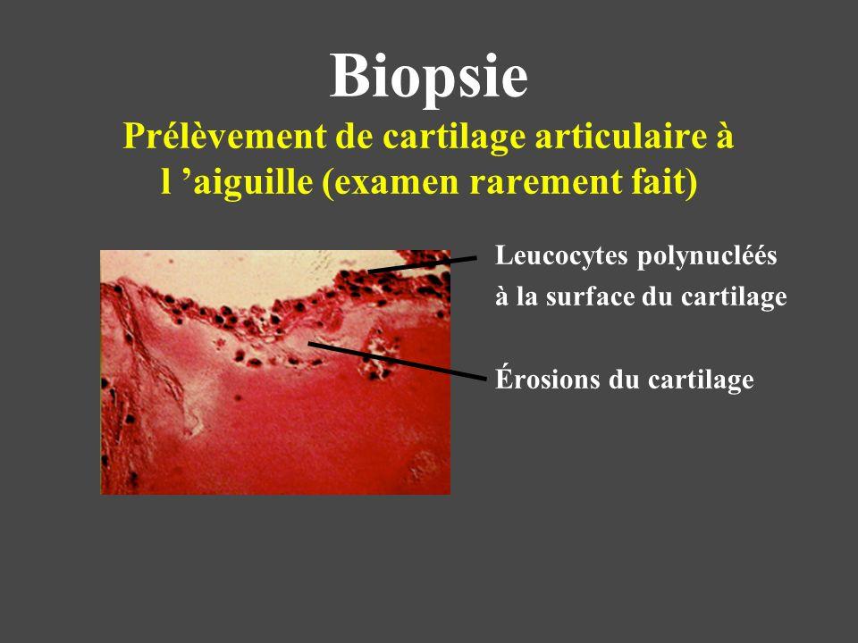 Biopsie Prélèvement de cartilage articulaire à l aiguille (examen rarement fait) Leucocytes polynucléés à la surface du cartilage Érosions du cartilag