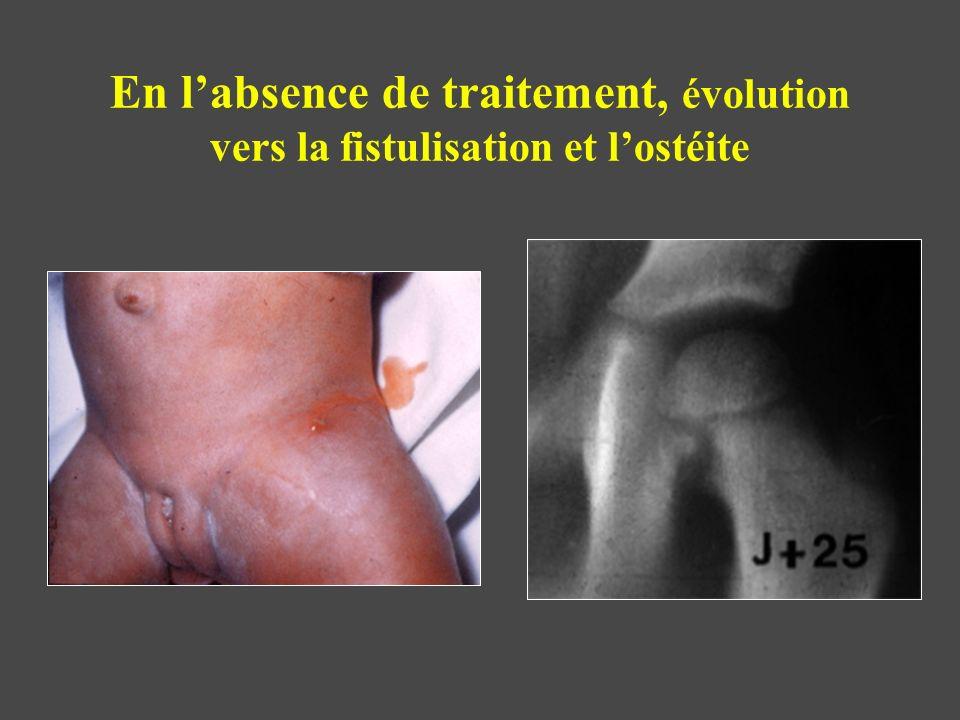 En labsence de traitement, évolution vers la fistulisation et lostéite