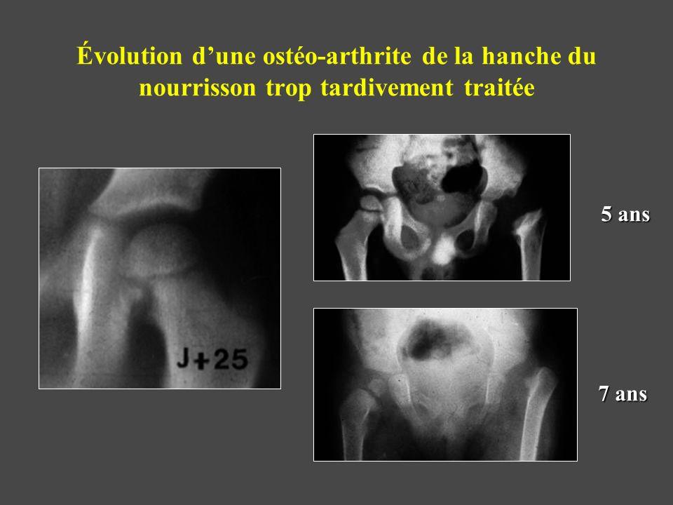Évolution dune ostéo-arthrite de la hanche du nourrisson trop tardivement traitée 5 ans 7 ans